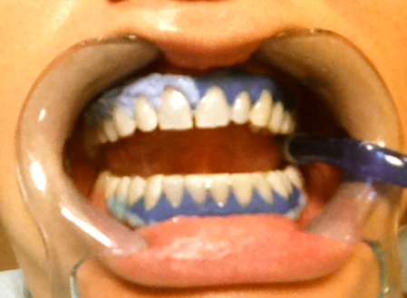 191 En Qu 233 Consiste El Blanqueamiento Dental Mi Sonrisa